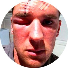 травмы на лице