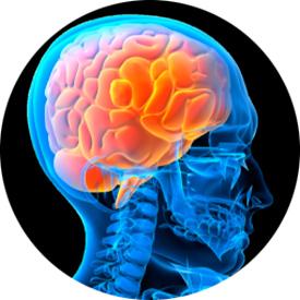 Гипертензивная энцефалопатия головного мозга, что это ...